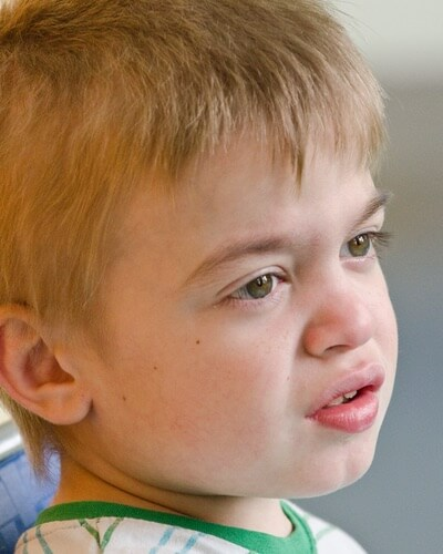 Course facial features in boys may be symptoms of Hunter syndrome