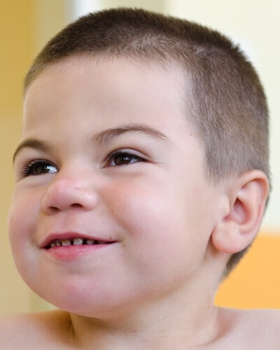 Widely spaced teeth in young boys may be a symptom of Hunter syndrome