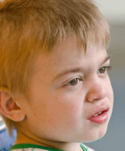 Ear Infections present in Hunter syndrome patient